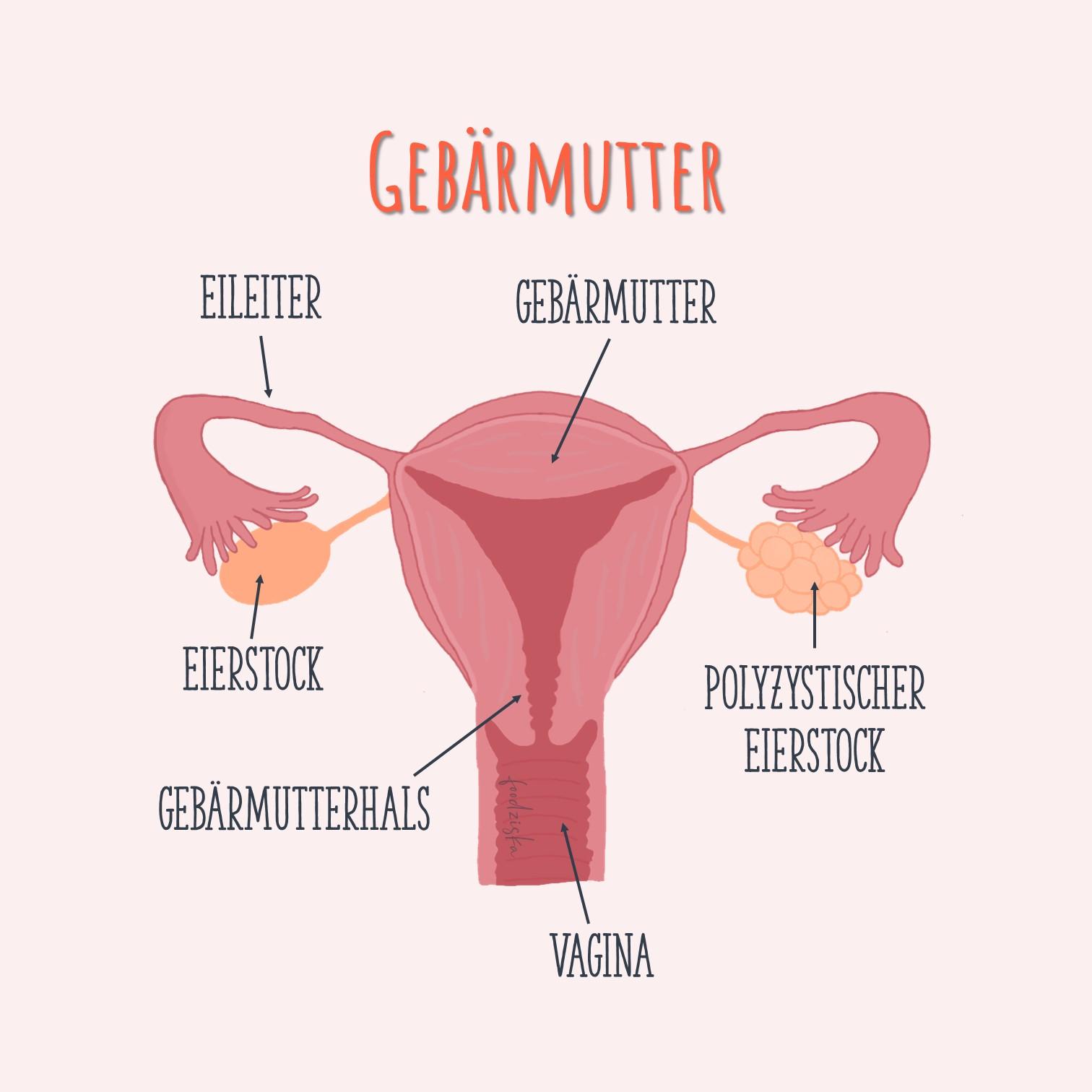 Teile der Gebärmutter bezeichne inkl. PCO